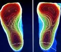 Alt. 3D-scanning - ger skumplastformar(oftast gula el gröna)