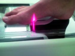 Vid 3D scanning: ortopedtekiker CAD cam modellerar och fräser ut inlägget i fräsmaskin.