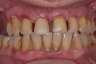 Tandköttsinflammation - Parodontit