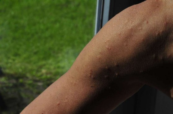 My arm, infected with Swimmer's itch parasites