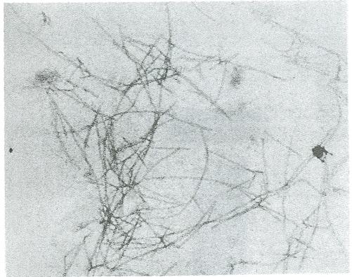 Elektromicroscopifoto av TTR-fibriller som bildats från normalt mänskligt TTR.