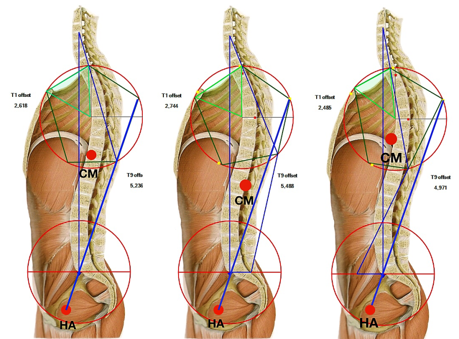 IN A BALANCED SPINE THE CENTRE OF MASS (CM) IS IN THE T9 LEVEL. IN THE TENSION TYPE CM IS LOWERED AND HIP AXIS IS FORCED BACKWARDS. IN COMPRESSION TYPE CM IS ELEVATED AND HIP AXIS FORCED FORWARDS.