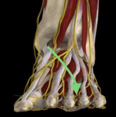 Oftast uppträder smärtan mellan 3-4 tån. för att där störs nerbanan av benen när främre valv sjunkit ner.