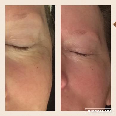 Före/efter Pure Cell Treatment, 60 min