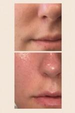 Före/efter en behandling Facial Powerlift, 30 min