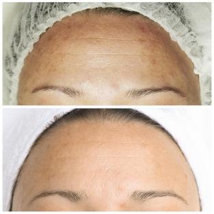 Reduceras rynkor, ärr, stora porer och pigmenteringar