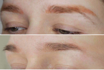 Efter 4 behandlingar