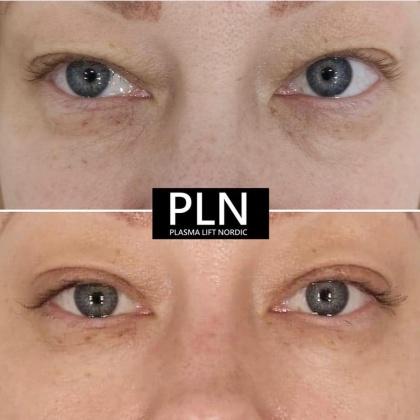 Läkt efter  behandling av ögonlock
