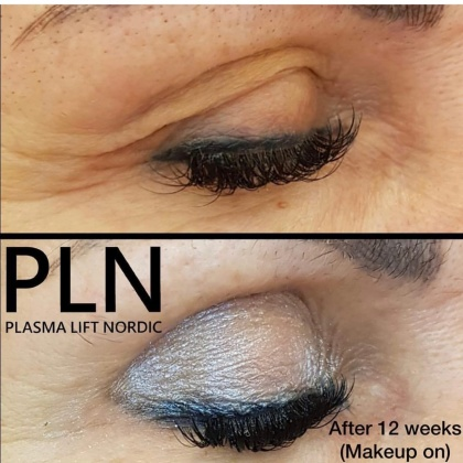 Läkt efter behandlig av ögonlock (ögonskugga på)