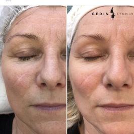 Reducering av ärr och stora porer - efter 1 behandling ( ärr har blivit mjukare och mindre vitt och hud fått jämnare ton och utseende).