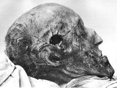 Karl XII:s kranium