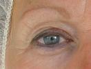 NBE 500 - Resultat öga - Före