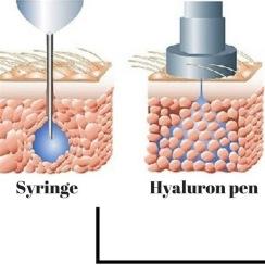 HYALURON METODEN