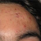 Före beh av acne ärr
