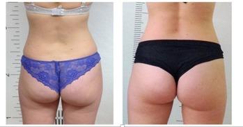 Före & Efter 10 behandlingar på 5 veckor