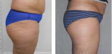 Före & Efter 10 behandlingar