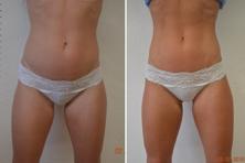 Före & Efter 9 behandlingar på 4.5 veckor