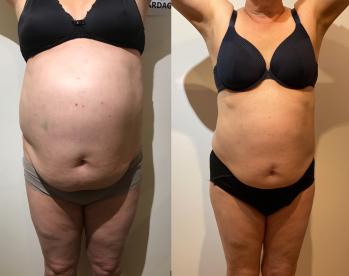 20 behandlingar under 7 månader + 10 behandlingar under 4 månader. 37 cm på 6 mätpunkter