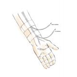 Hemodialys i armen