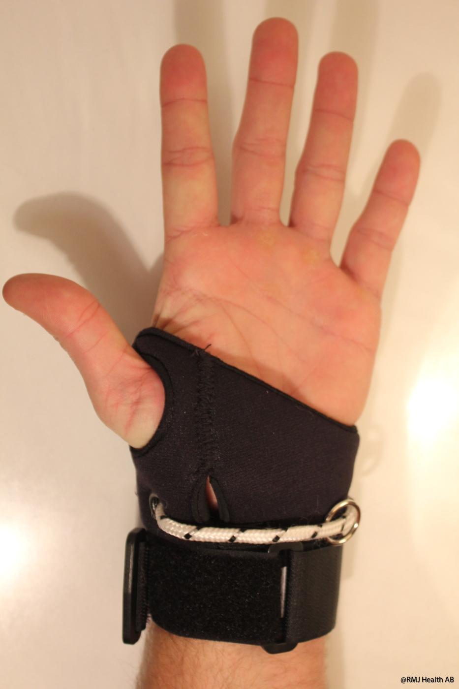 Öppen skurning i handflatan